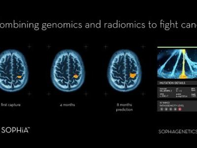 """Sophia Genetics bags $77M Series E, with 850+ hospitals signed up to its """"data-driven medicine"""""""