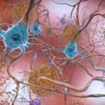 "Can Certain Medical Treatments ""Seed"" Alzheimer's Disease?"