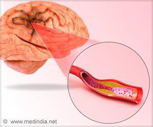 Women's Lifestyle Changes, Even in Middle Age, may Decrease Future Stroke Risk