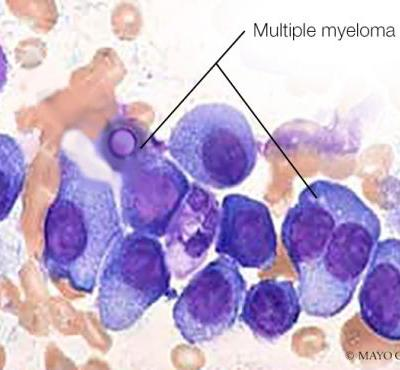 Mayo Mouse Helps Fight Multiple Myeloma