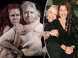 Photos show the reality of battling breast cancer