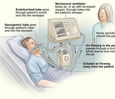 Excess Use of Ventilators to Treat COVID-19