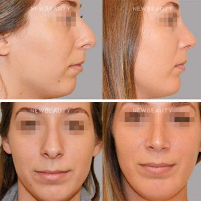 The Trending Combination Surgery That Makes a Huge Difference in Your Profile