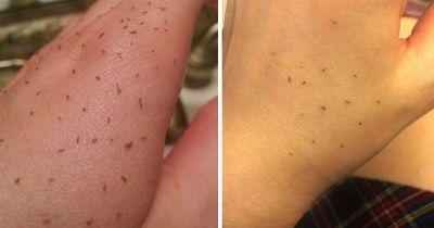 Is skin gritting really a good way to get rid of blackheads?