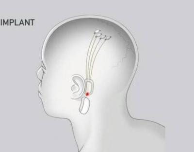 Elon Musk's Neuralink will put tiny threads in brains to control devices