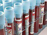 First two-drug HIV treatment regimen gets US FDA approval