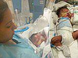 Three-month-old baby boy born without skin below the neck transferred to new hospital for treatment