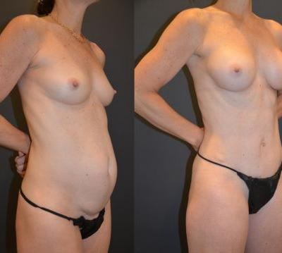Shape-Shifting Body Surgery: Why It's Not Just For Mommies Anymore