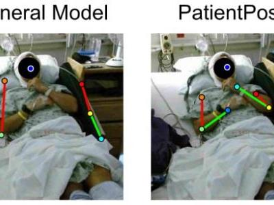 Patient-Specific Pose Estimation in Clinical Environments
