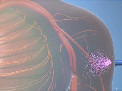 FDA Approves First of New Migraine Drugs