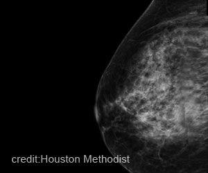 Machine Learning can Now Identify High Risk Cancerous Breast Lesions