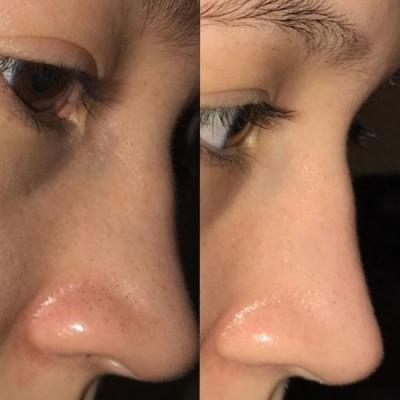 This Reddit User Just Shared Her Ultimate Blackhead-Banishing Skincare Routine