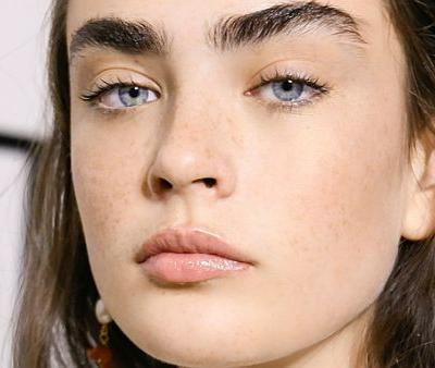 Why Chin Filler Is the Hottest Face Sculpting Treatment Right Now