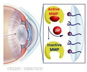 New Hydrogel Contact Lens May Treat Serious Eye Disease More Effectively