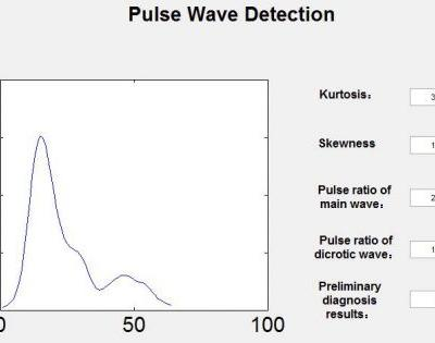 Design of a Continuous Blood Pressure Measurement System Based on Pulse Wave and ECG Signals