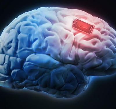Q&A: The Ethics of Using Brain Implants to Upgrade Yourself