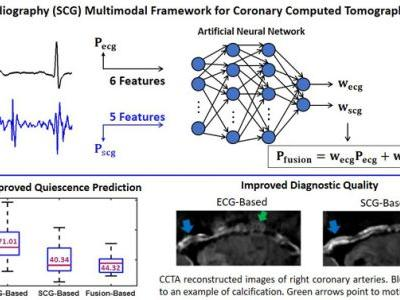 An Adaptive Seismocardiography -ECG Multimodal Framework for Cardiac Gating Using Artificial Neural Networks