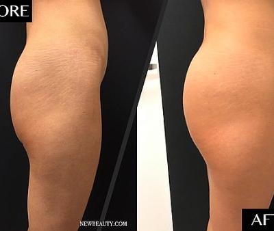 This Is What It Looks Like When You Get a 'Sculptra Butt Lift'