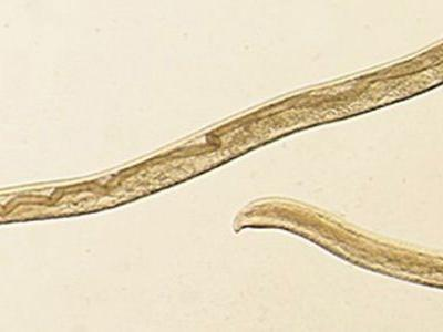 Oregon woman's creepy nightmare: 14 cattle worms found in her left eye