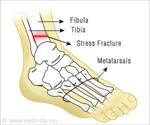 Higher Magnesium Levels may Prevent Fractures Among the Ageing Population