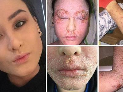 Woman who had to vacuum flakes of skin off her bed every day explains why she's given up topical steroids