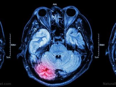 The brain-gut connection: A new study finds that traumatic brain injury also causes intestinal damage