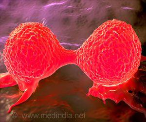 Key Protein to Suppress Tumor Growth in Breast Cancer
