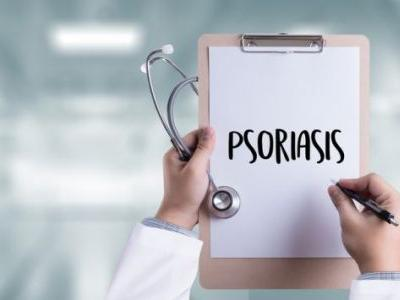 UCB psoriasis drug beats J&J's second top-selling product in Phase III study