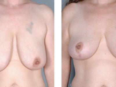 Best Age for Breast Lift Surgery