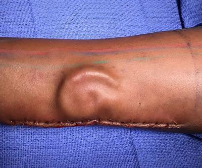 Doctors give soldier new ear after growing it in her arm