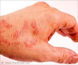 Five Subgroups of Atopic Eczema Newly Identified