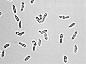 PacBio Sequencing Reveals Food Processing & Pathogenic Strains of Yeast are the Same Species