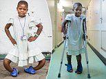 11-year-old girl whose bowed legs were twisted 180 DEGREES