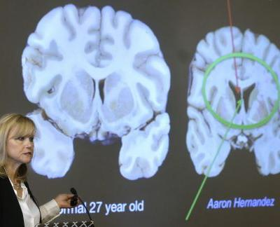 Repeated hits, not concussions, cause CTE, study finds