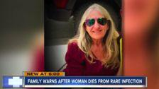 Woman Dies After Dog Saliva Leads To Rare Infection, Family Says