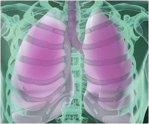 New Protein Mimic Developed to Help Injured Lungs Breathe