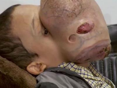 Boy dies after surgery to remove 10-pound tumor from face