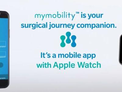 Apple Watch used for major clinical study of knee and joint replacement patients