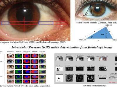 Automated Vision-Based High Intraocular Pressure Detection Using Frontal Eye Images