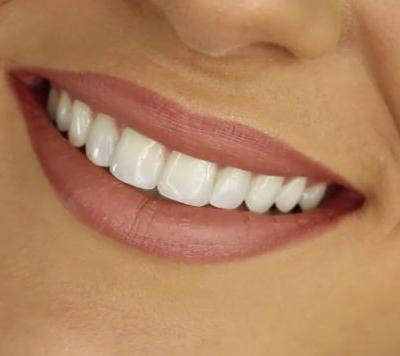 Losing your teeth by middle age is linked to an increased risk of cardiovascular disease