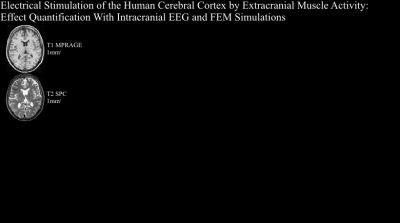 Electrical Stimulation of the Human Cerebral Cortex by Extracranial Muscle Activity: Effect Quantification with Intracranial EEG and FEM Simulations