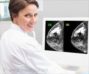 Screening May Not Reduce Breast Cancer Deaths