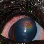 Clinical Case Challenge: Blepharospasm of the Right Eye