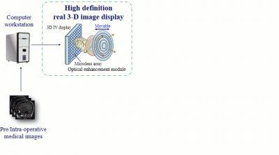 High Quality See-Through Surgical Guidance System Using Enhanced 3D Autostereoscopic Augmented Reality