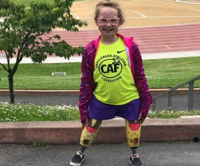 9-year-old given new legs after wildfires claim prosthetics