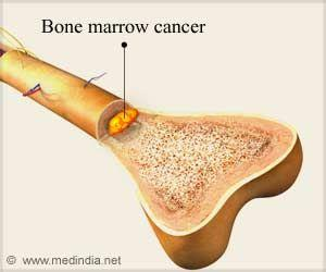 Drug Improves Survival in Bone Cancer Patients