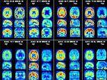 Scientists develop new brain scan to detect Alzheimer's disease by 'lighting up' neural plaques