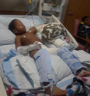 5-year-old boy hospitalized after being attacked by neighbor's dog