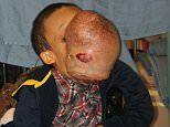 Cuban boy, 14, with 10-pound tumor on his face dies