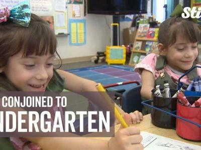 'How far they've come': Formerly conjoined twins start kindergarten
